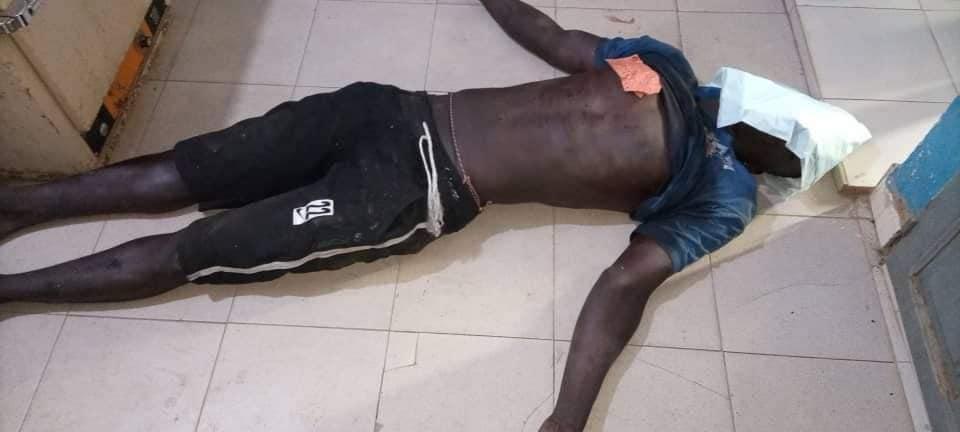 Violences au Sénégal - Les images insoutenables des blessés et mort